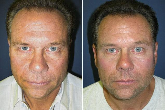 "Truck Driver ""Man's Man"" Dad Turns to Botox and Fillers to Impress at Daughters' Weddings"
