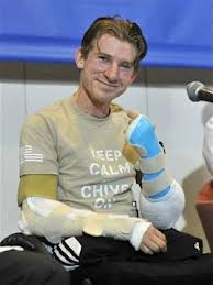 Double Arm Transplant Surgery on Quad Amputee Veteran Soldier