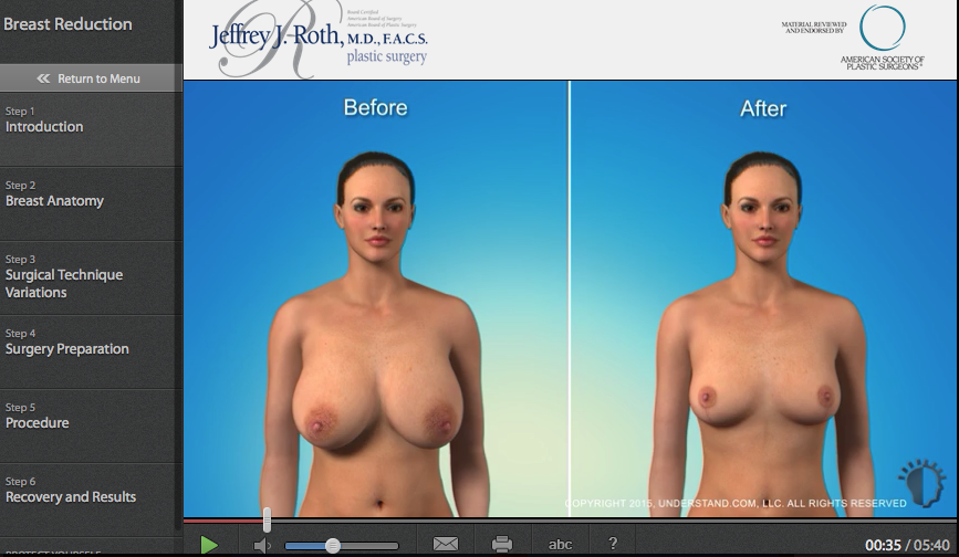 Breast Reduction (Reduction Mammaplasty)