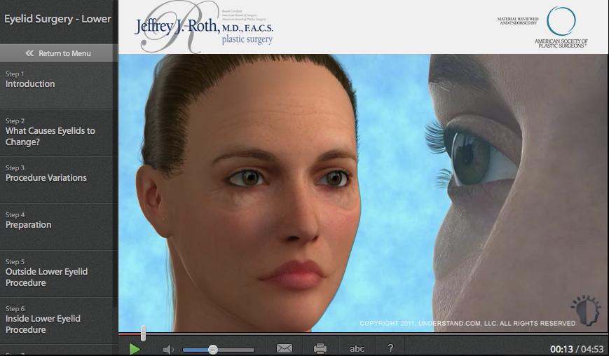 Eyelift (Blepharoplasty)