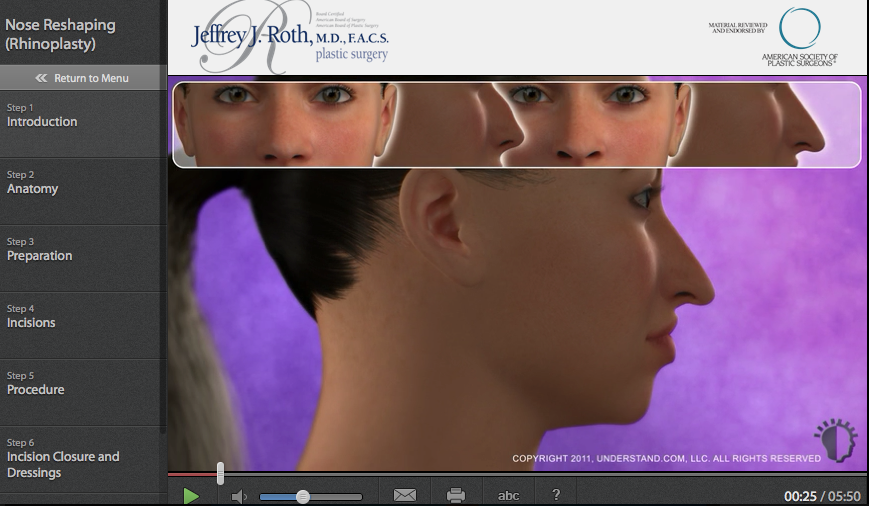 Nose (Rhinoplasty)