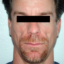 Facial Filler 44 Year Old Male