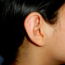 Ear Reshaping After