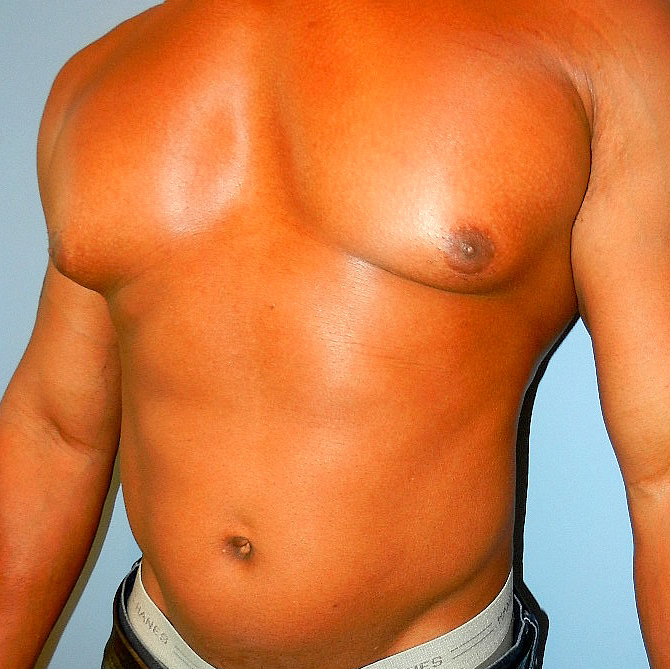 Liposuction and surgical removal of breast tissue before pictures
