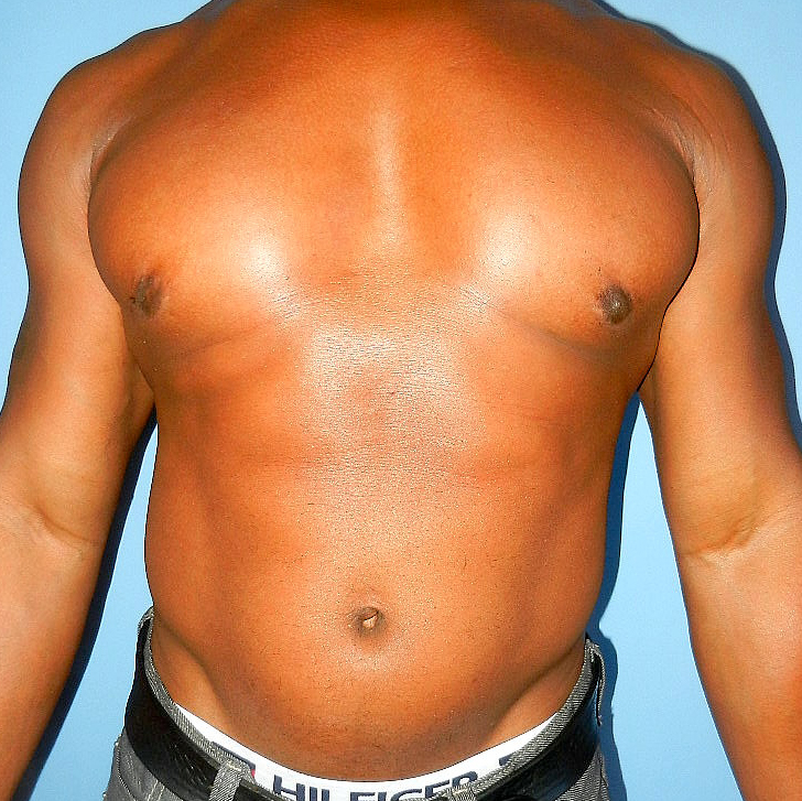 Liposuction and surgical removal of breast tissue after pictures