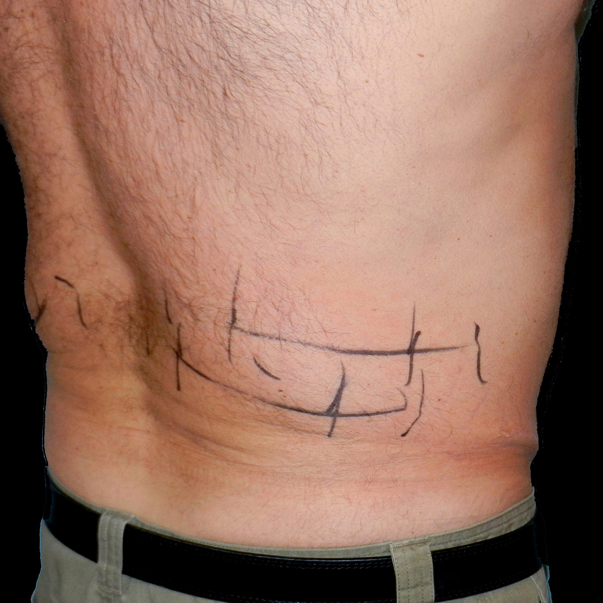 CoolSculpting Male Back Before