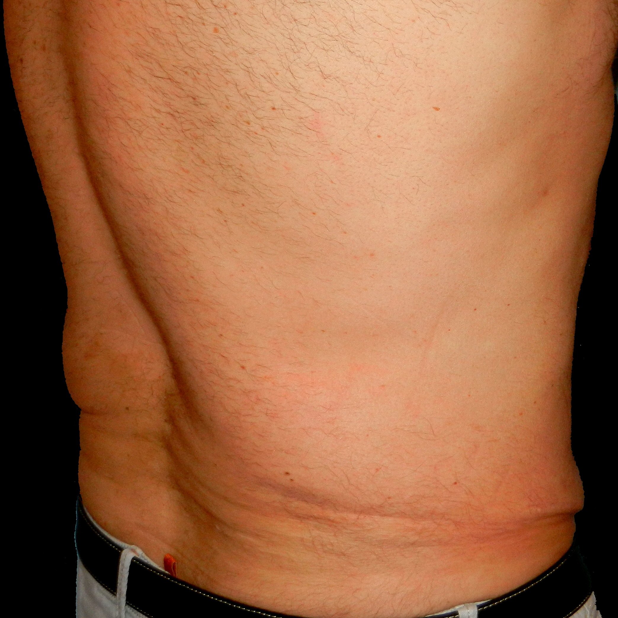 CoolSculpting Male Back After