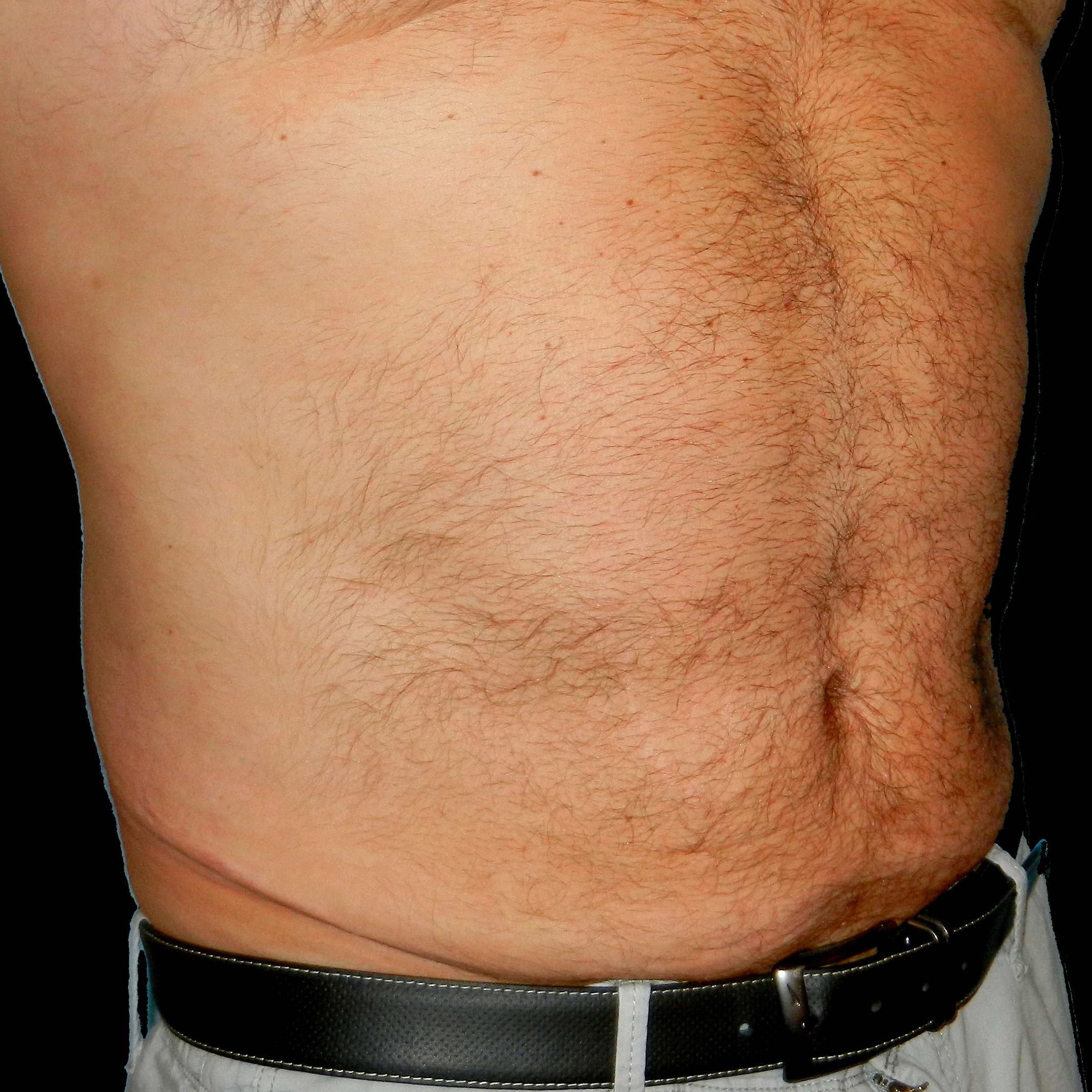 CoolSculpting Male Stomach After