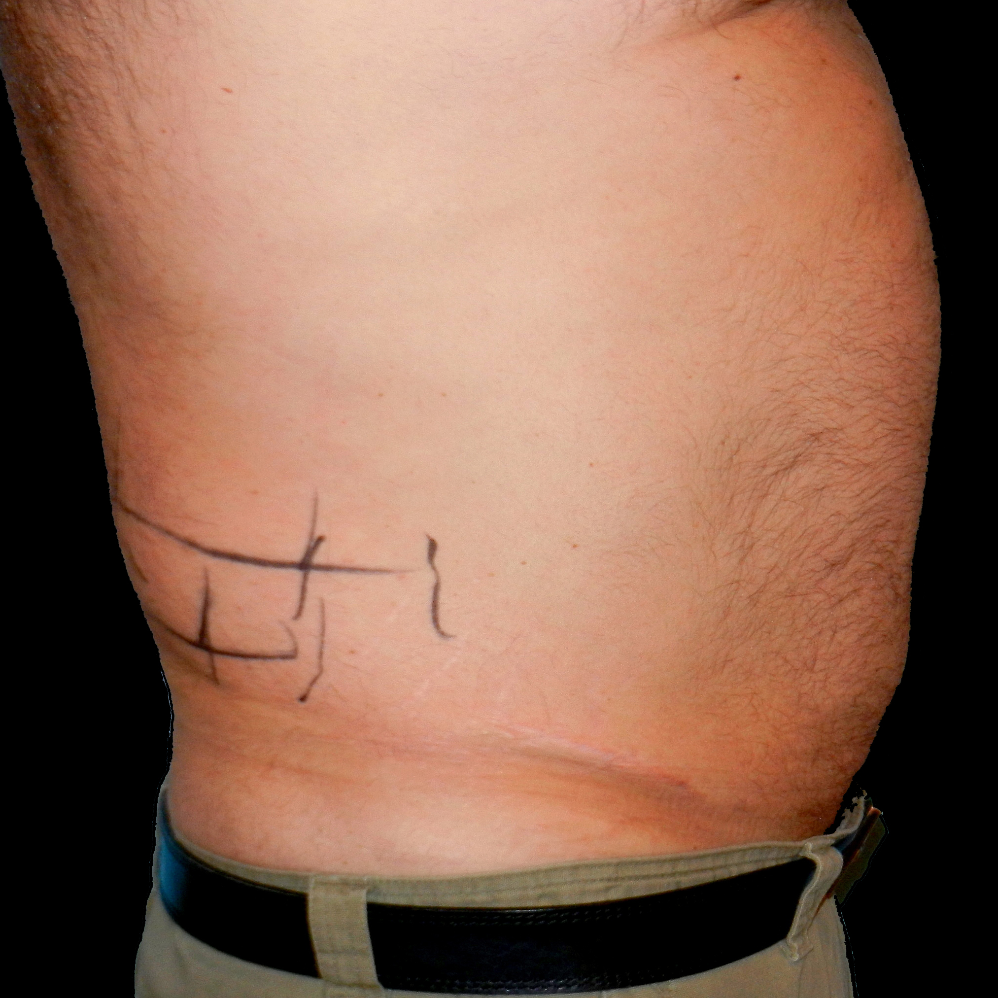 CoolSculpting Male Flanks Before