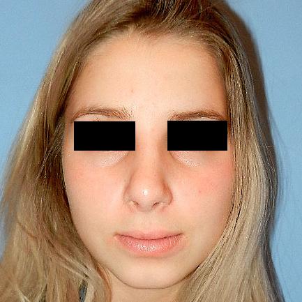 Rhinoplasty Age 16 After