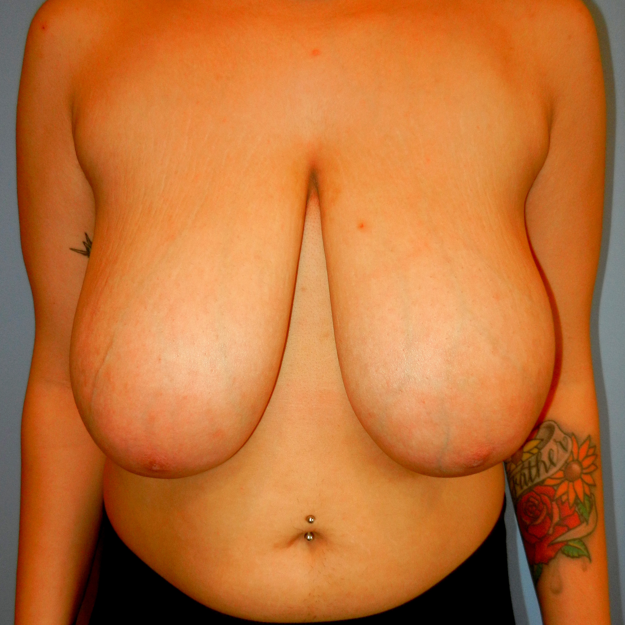 Breast Reduction Before Picture