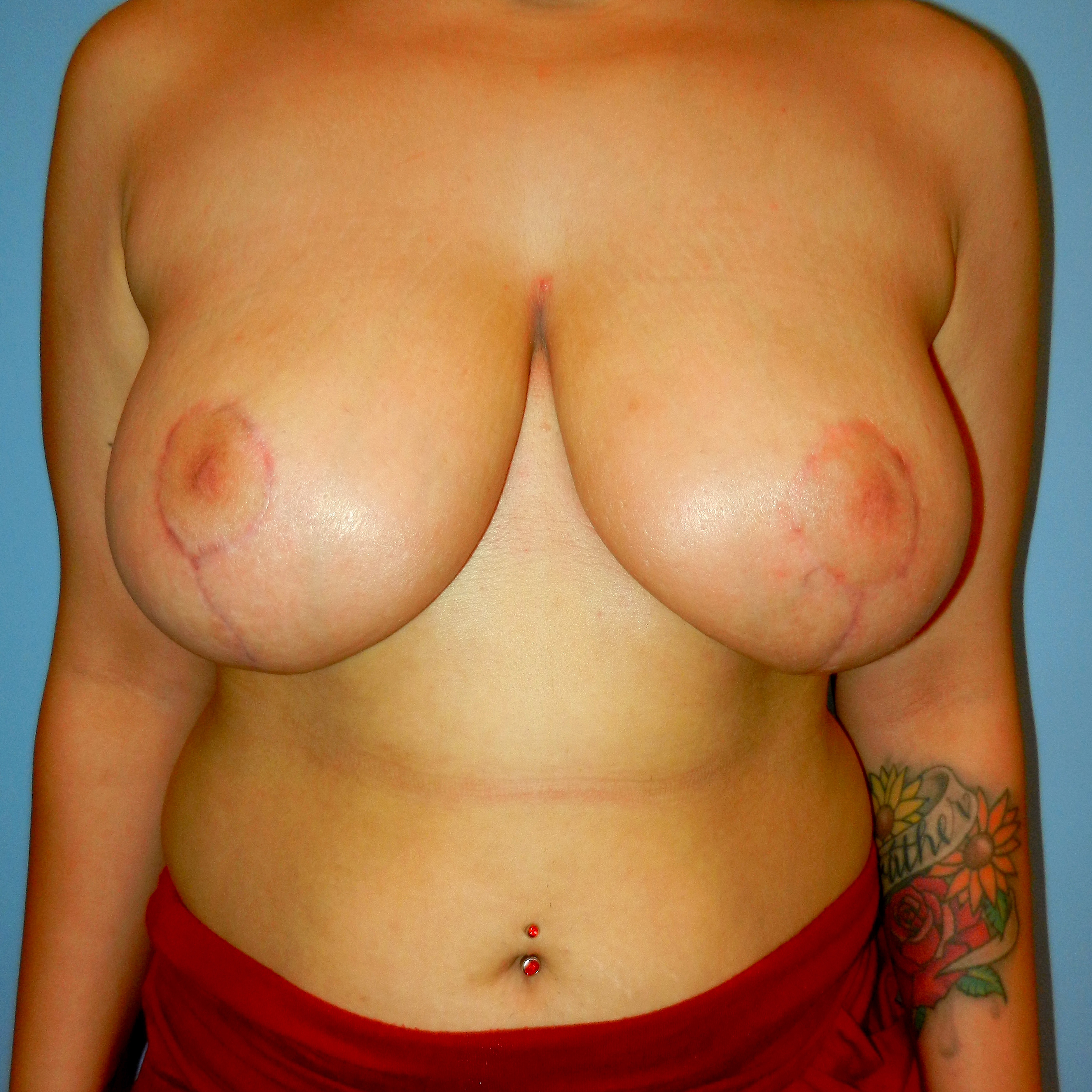 Breast Reduction 3 Months After Picture