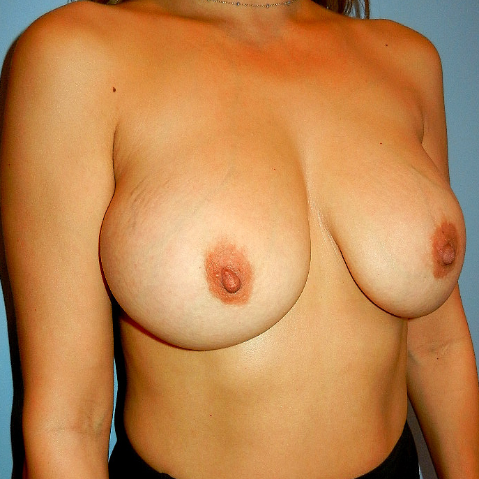 Breast Implant Removal Before Picture
