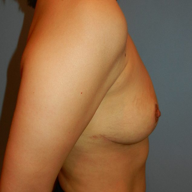 Breast Implant Removal After Picture