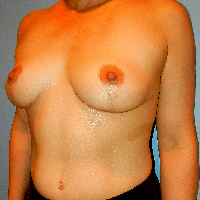 Breast Lift After Picture