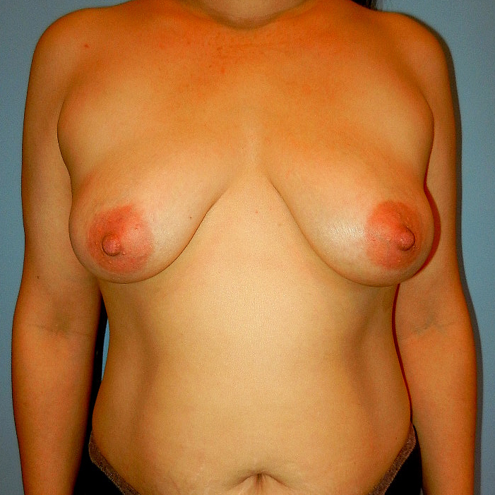 Breast Lift Before Picture