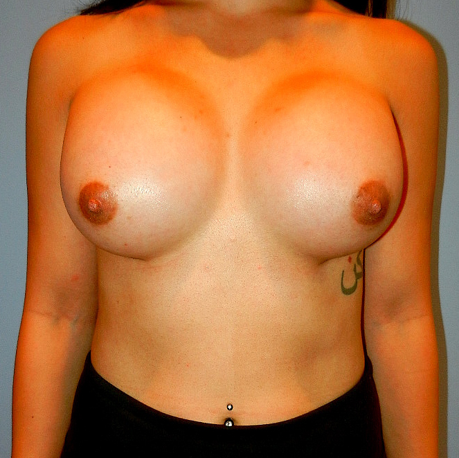 Large Breast Augmentation After