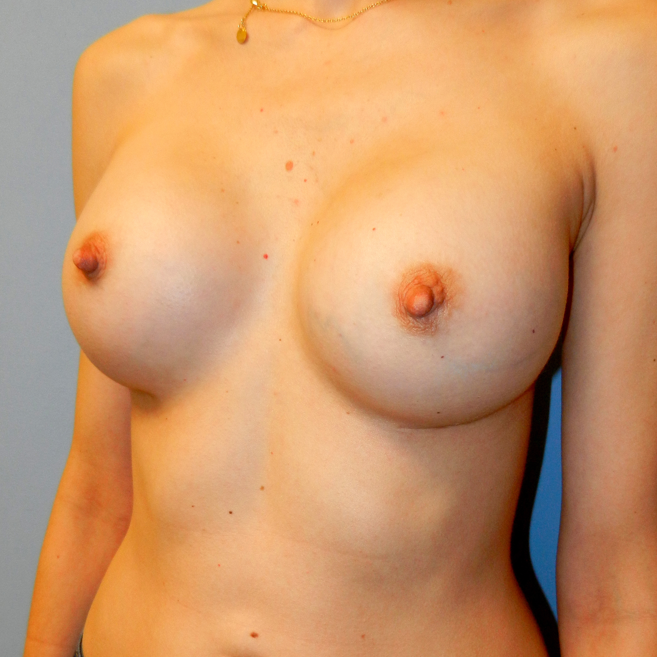 32 A to 32 Full C Breast Augmentation After Picture