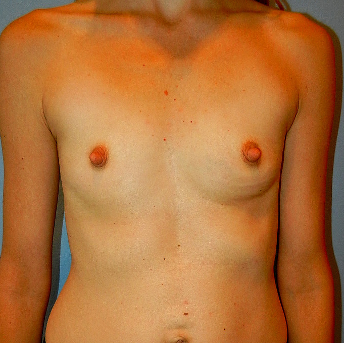 32 A to 32 Full C Breast Augmentation Before Picture