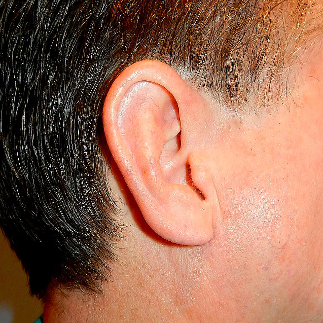 Earlobe Reduction After