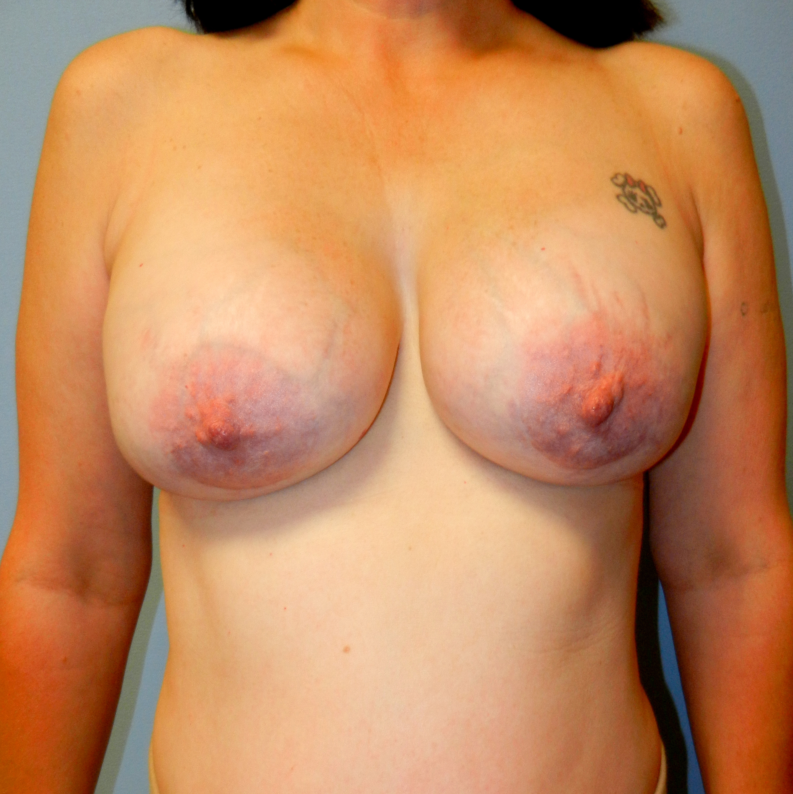 Breast Implant Revision 385 cc After