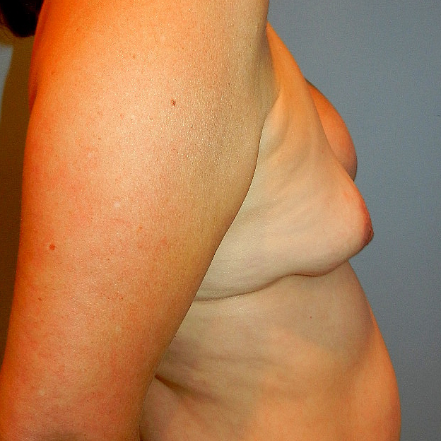 Breast Implant Revision 385 cc Before