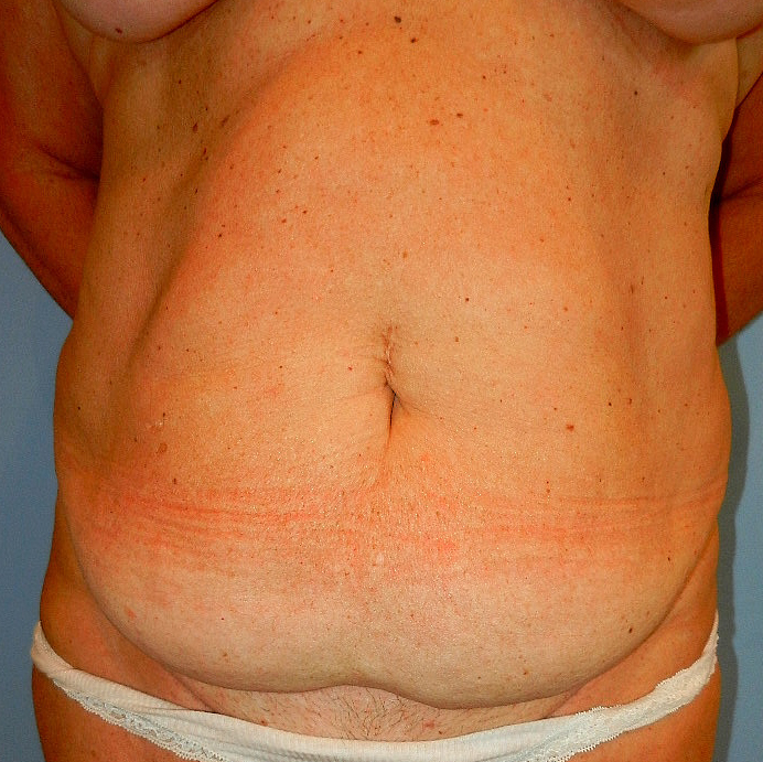 Tummy Tuck Age 52 Before