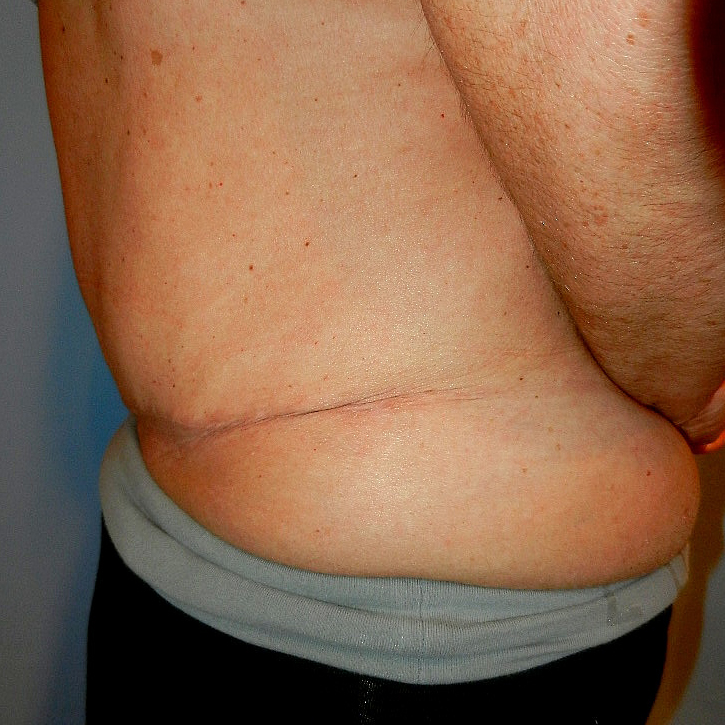 Tummy Tuck Age 52 After